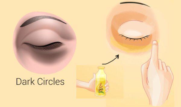 dark circles eyes remedy