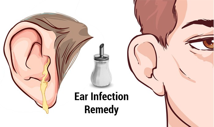 diagram for waves home remedies for ear infections top 10 home remedies for a pontoon boat wiring diagram for lights and switches