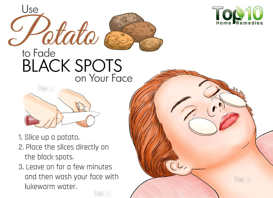 Home Remedies For Black Spots On Your Face Top 10 Home