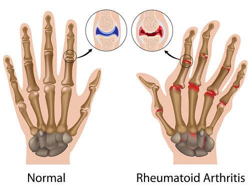 mano artrite reumatoide