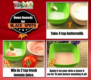 Black Spots Home Remedy