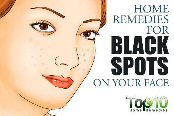 How To Remove Spots From Face In  Days Naturally