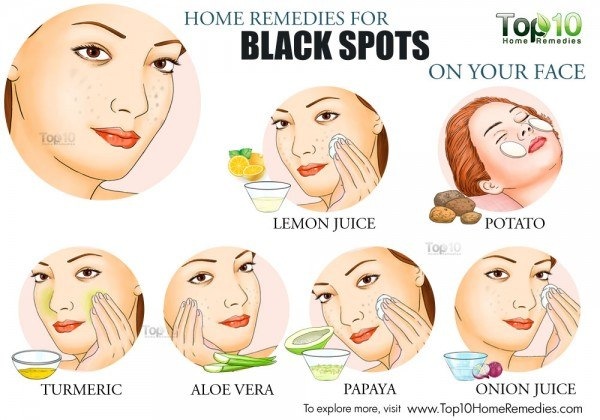 home remedies for black spots on your face
