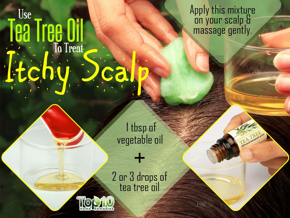 Home Remedies For Itchy Scalp Not Dandruff