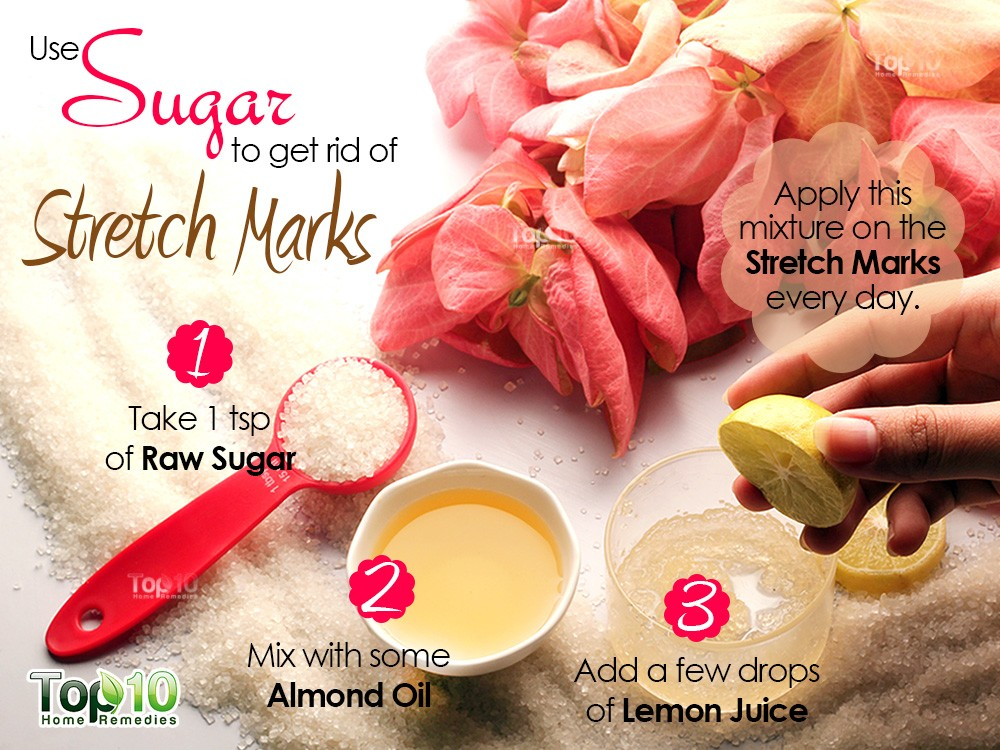 How To Remove Stretch Marks Naturally Home Remedies