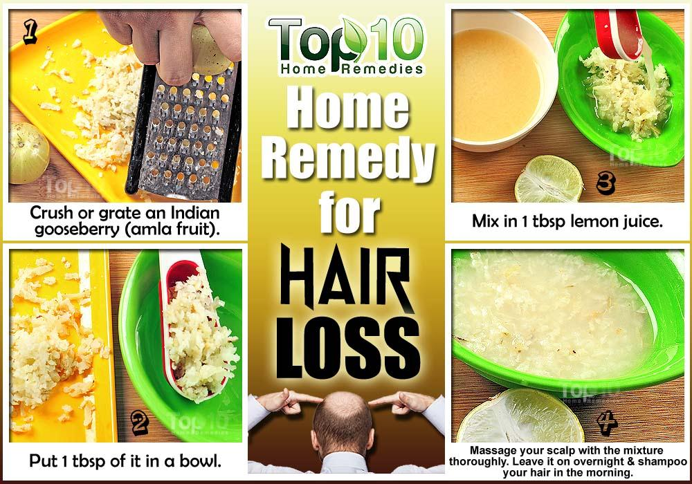 What To Do For Hair Loss Home Remedies