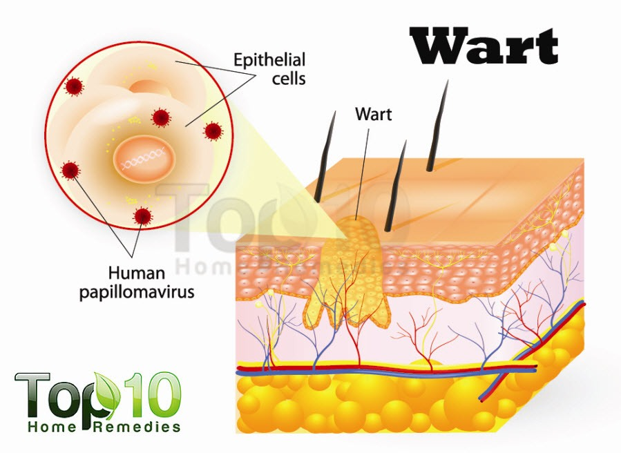 Diagram of hpv wart