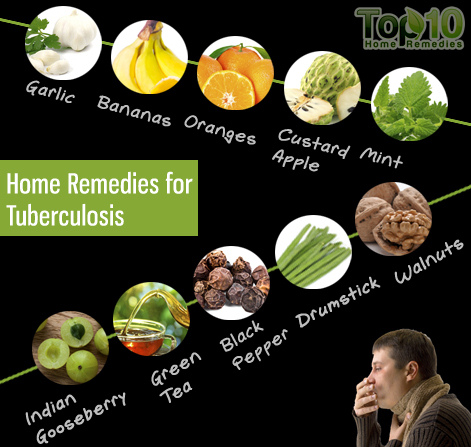 Home Remedies for Tuberculosis | Top 10 Home Remedies