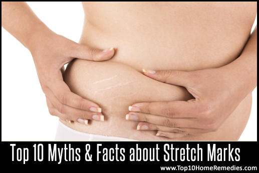 stretch mark myths