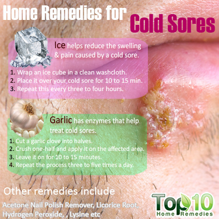 Home Remedies For Cold Sores That Work
