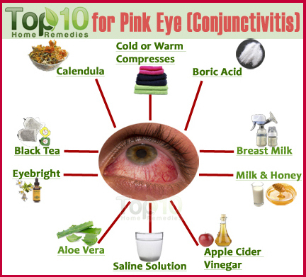 conjunctivitis home remedies-1
