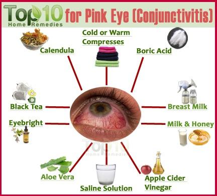Conjunctivitis Natural Treatment