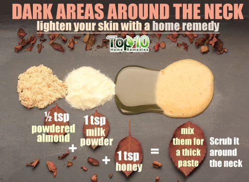 dark areas around the neck home remedy