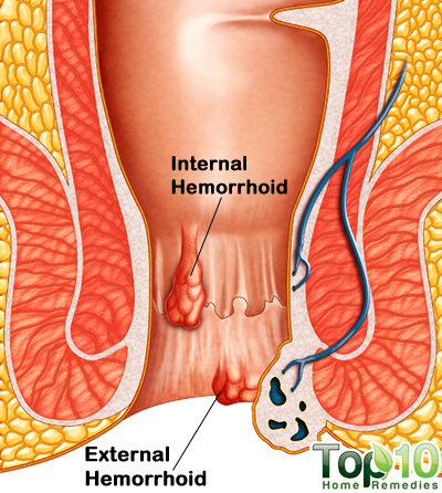 hemorrhoids medical diagram