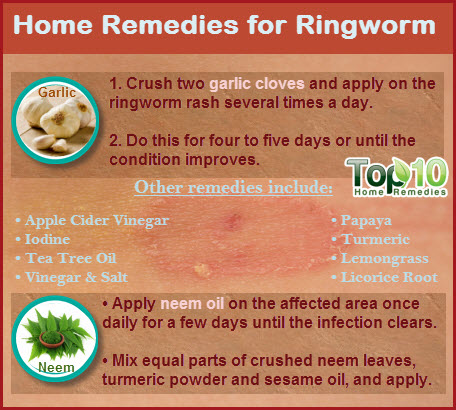 Natural Cures For Ringworm On Skin