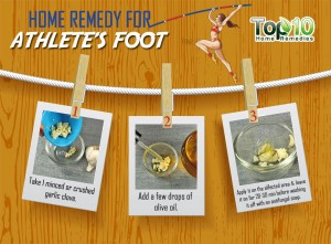 athletes foot home remedy
