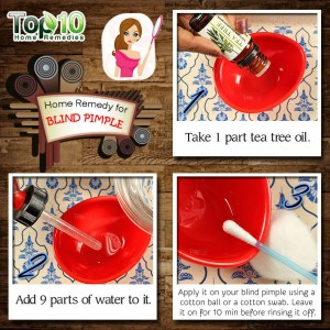 blind pimple home remedy