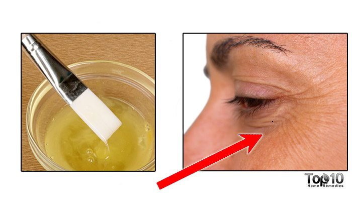best treatment for crows feet