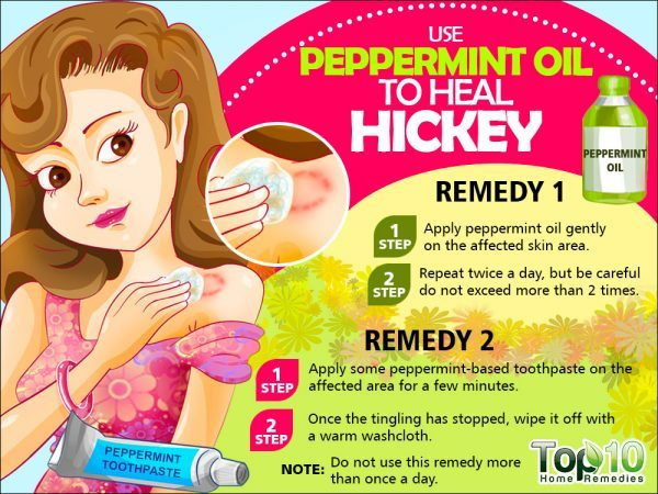 peppermint for hickies