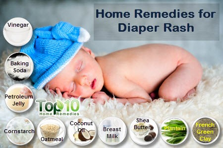Natural Cures For Diaper Rash Yeast Infection