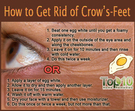 how to get rid of crow's feet