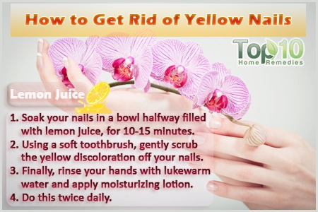 Yellow Toenail Causes How To Cure Get Rid Remedies - oukas.info