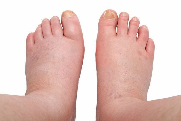 water retention home remedies