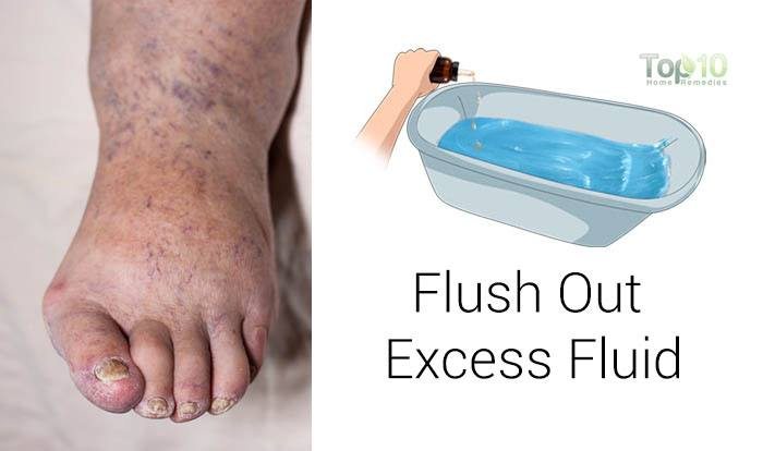 Natural Remedies For Water Retention In Feet