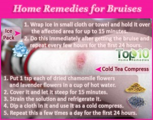 how to get rid of hickies with toothpaste