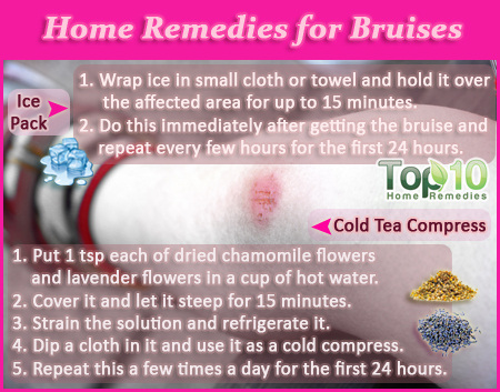home remedies for bruise
