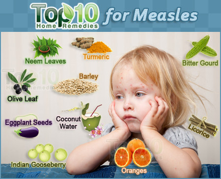 home remedies for measles | top 10 home remedies, Human Body