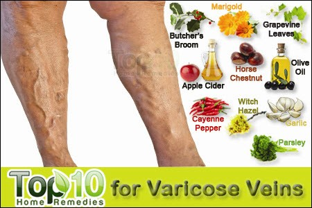 Cure Varicose Veins Home Remedy
