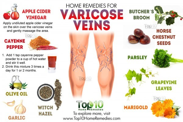 home remedies for varicose veins