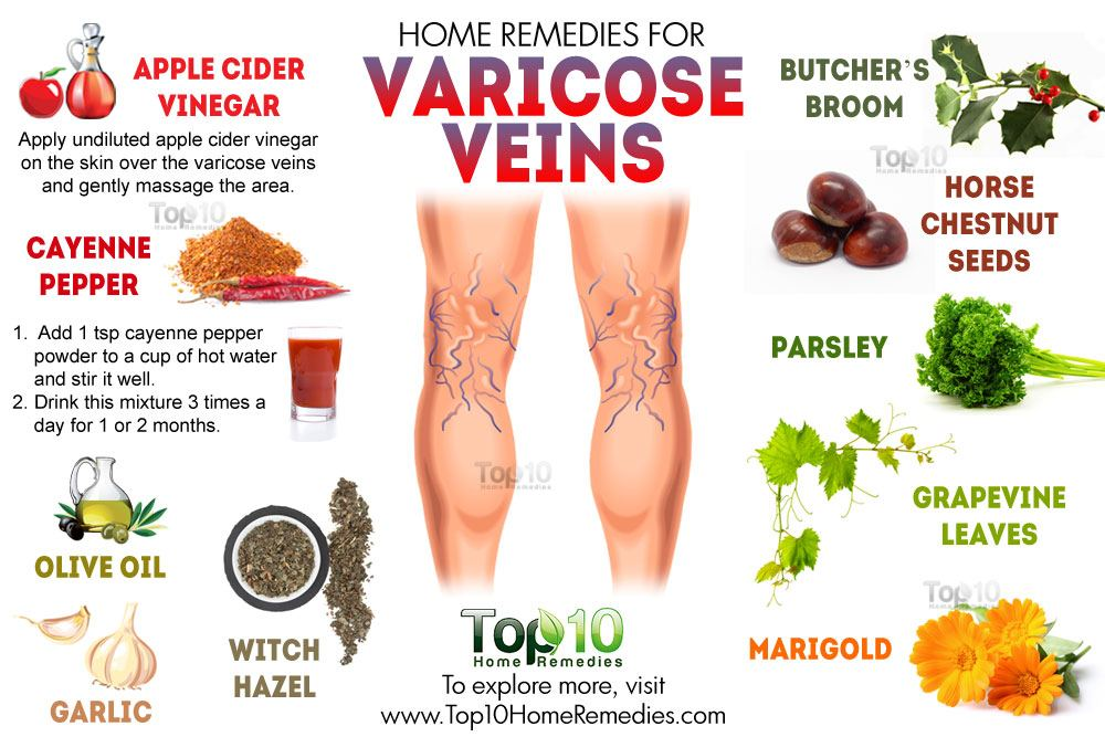 Can Varicose Veins Be Treated Naturally