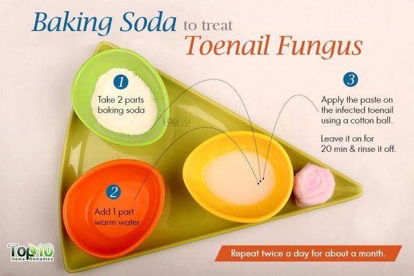 baking soda for toenail fungus