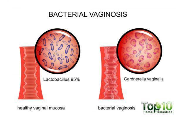 bacterial vaginosis diagram