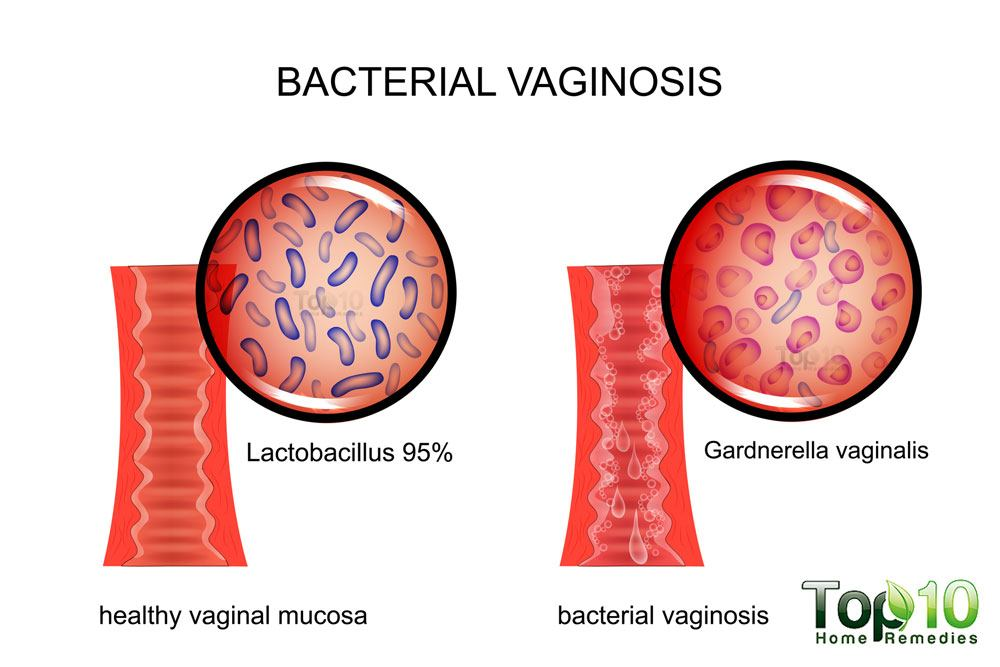 home remedies for bacterial vaginosis | top 10 home remedies, Human body