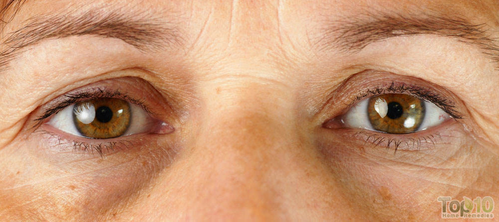 how to lose dark circles