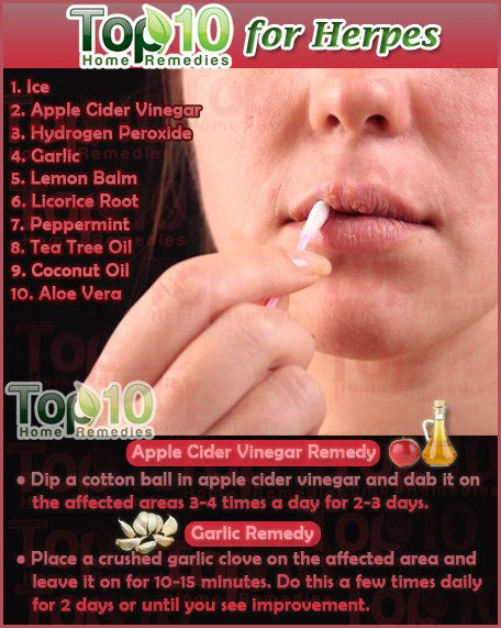 Natural Cure Herpes Type