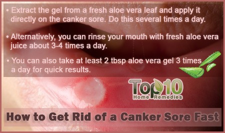 how to get rid of a canker sore fast page 3 of 3 top 10 home remedies. Black Bedroom Furniture Sets. Home Design Ideas