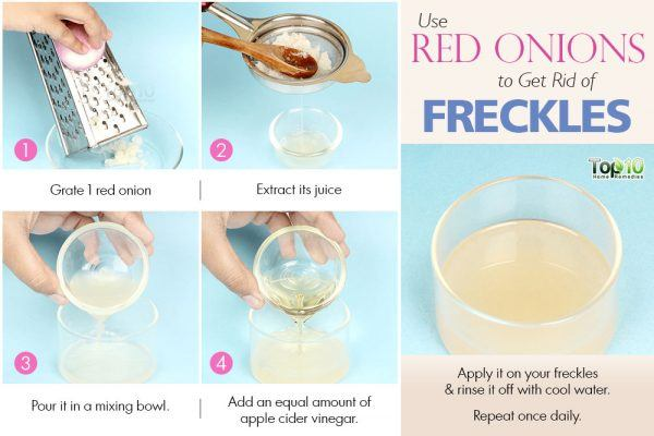onion juice to get rid of freckles