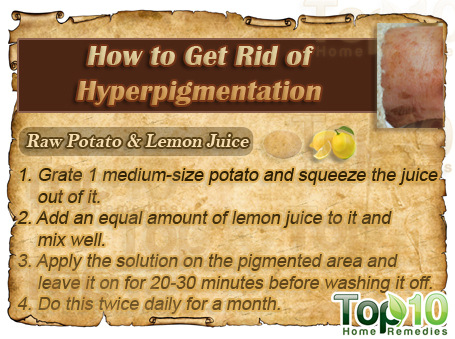 how to get rid of hyperpigmentation