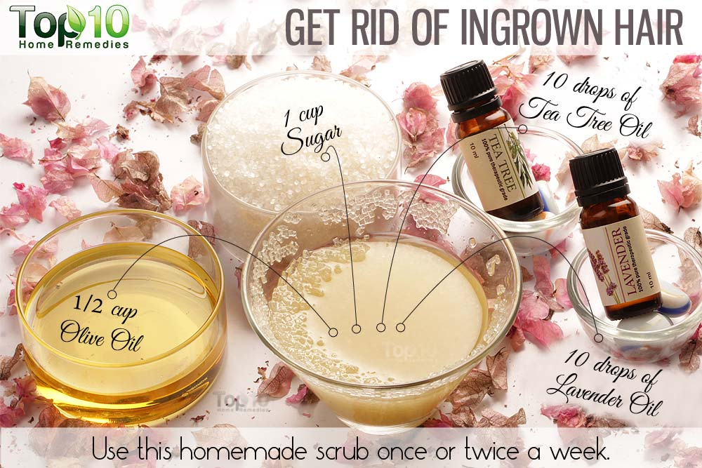 Home remedies to prevent ingrown hairs