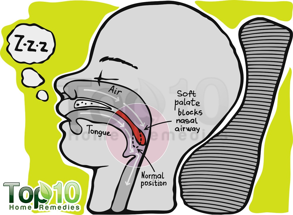 How to stop snoring top 10 home remedies - Stof snor ...