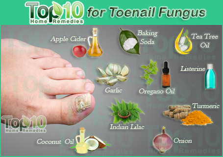 Home Remedies for Toenail Fungus | Top 10 Home Remedies