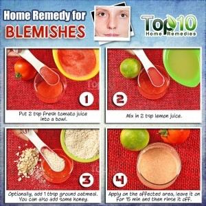 blemishes home remedy