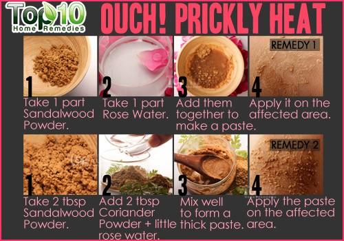 prickly heat home remedy