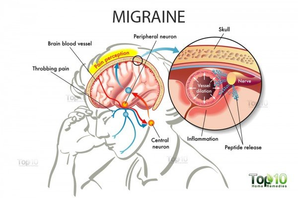 migraine diagram