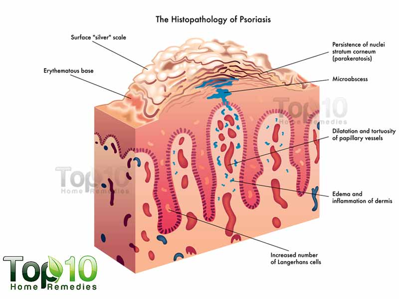 When we have psoriasis, our T cells attack our skin cells instead 2