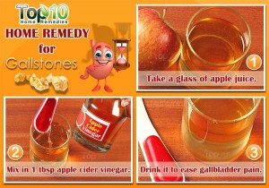 gallstone home remedy